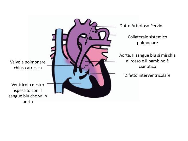 Atresia polmonare e DIV