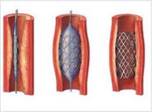 Impianto stent