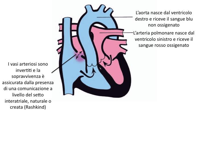 Trasposizione delle grandi arterie