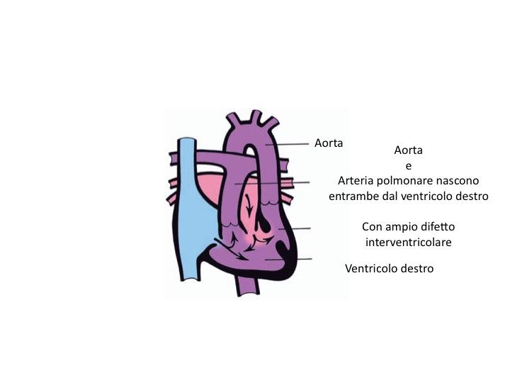 ventricolo destro a doppia uscita