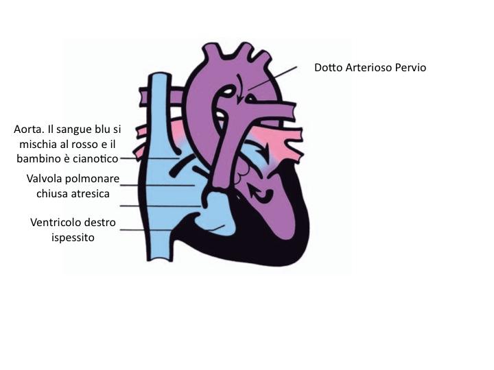 Atresia polmonare a setto intatto