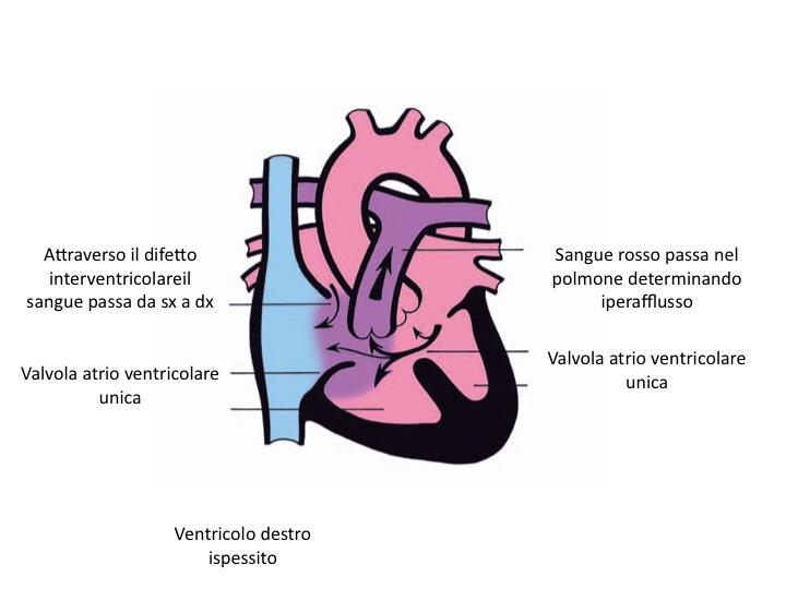 Canale atrio ventricolare completo