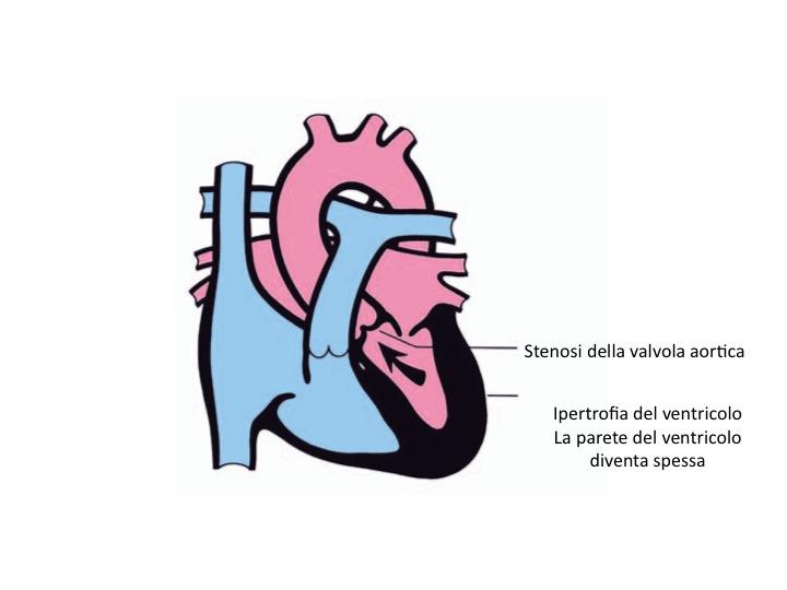 Stenosi valvolare aortica