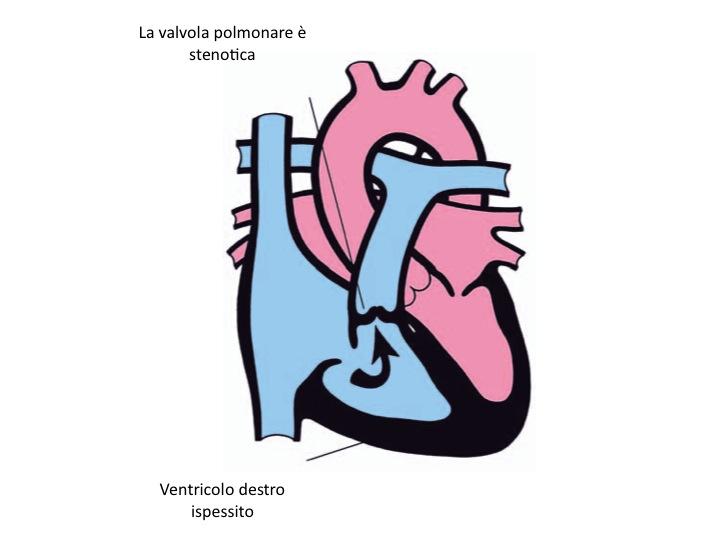 Stenosi valvolare polmonare